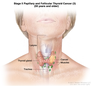 Stage II papillary and follicular thyroid cancer (3) in patients 55 years and older; drawing shows cancer in the thyroid gland and nearby muscles in the neck. Also shown are the larynx and trachea.