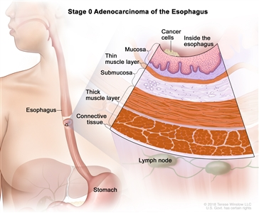 Stage 0 adenocarcinoma of the esophagus; drawing shows the esophagus and stomach. An inset shows cancer cells in the inner lining of the esophagus wall. Also shown are the mucosa layer, thin muscle layer, submucosa layer, thick muscle layer, and connective tissue layer of the esophagus wall. The lymph nodes are also shown.