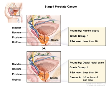 Two panel drawing of stage I prostate cancer; the top panel shows cancer in less than one-half of the right side of the prostate found by needle biopsy. The bottom panel shows cancer in less than one-half of the left side of the prostate found by digital rectal exam. In both panels, the PSA level is less than 10 and the Grade Group is 1. The bladder, rectum, and urethra are also shown.
