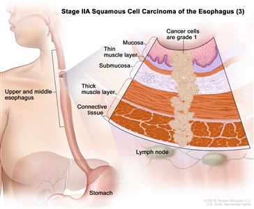 Stage IIA squamous cell cancer of the esophagus (3); drawing shows the upper and middle parts of the esophagus and the stomach. An inset shows grade 1 cancer cells in the mucosa layer, thin muscle layer, submucosa layer, thick muscle layer, and connective tissue layer of the upper and middle esophagus wall. The lymph nodes are also shown.