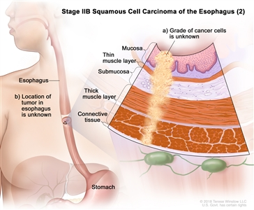 Stage IIB squamous cell cancer of the esophagus (2); drawing shows the esophagus and stomach. An inset shows (a) cancer cells of an unknown grade in the mucosa layer, thin muscle layer, submucosa layer, thick muscle layer, and connective tissue layer of the esophagus wall. Also shown is (b) the location of the tumor in the esophagus is unknown.