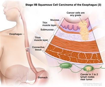 Stage IIB squamous cell cancer of the esophagus (3); drawing shows the esophagus and stomach. An inset shows cancer cells of any grade in the mucosa layer, thin muscle layer, and submucosa layer of the esophagus wall. Also shown are the thick muscle layer and connective tissue layer of the esophagus wall and cancer in 1 lymph node near the tumor.