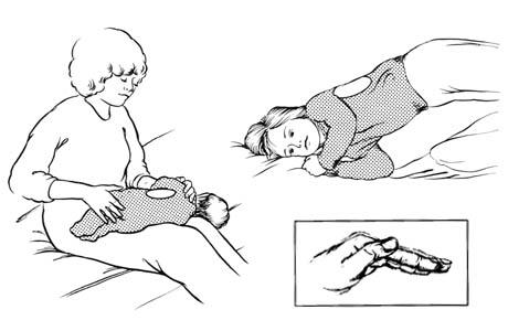 Drenaje postural para los lóbulos inferiores (costados)
