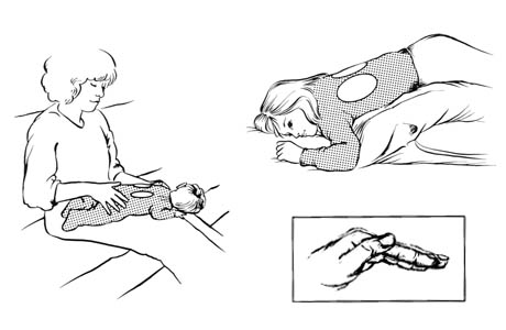 Drenaje postural para los lóbulos inferiores (segmento posterior)