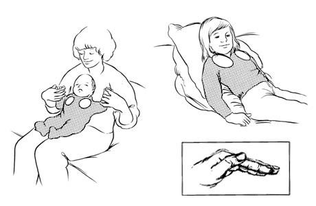 Drenaje postural para los lóbulos superiores (segmento anterior)