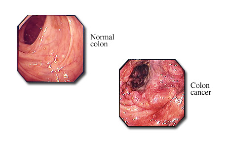 Colon cancer visible with a colonoscope