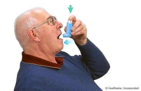 Un hombre presionando el inhalador e inhalando