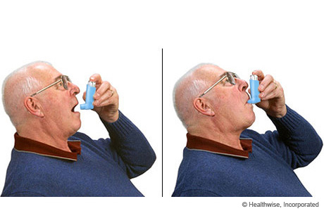 A man holding the inhaler in two positions