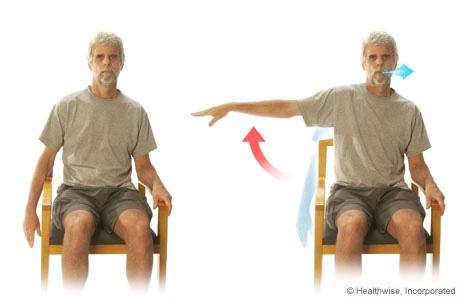 Imagen de un paciente practicando extensiones de brazos