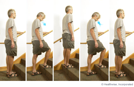 Picture of step-up exercise for COPD