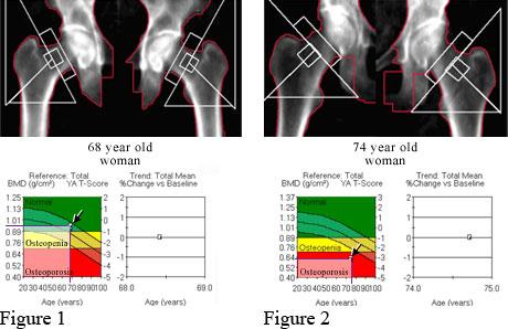 DXA of normal hipbones and DXA of osteoporosis in hipbones