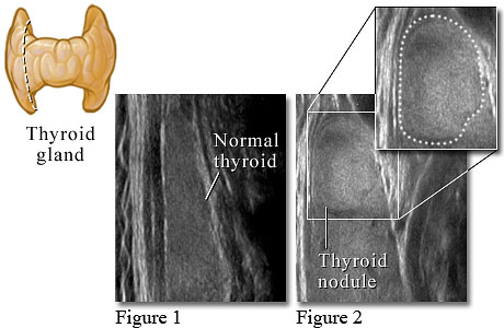 Ultrasound image of a normal thyroid and one with a thyroid nodule