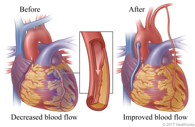 Decreased blood flow caused by narrowed or blocked artery before surgery and normal blood flow after surgery