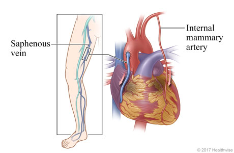 Location of saphenous vein in leg, and heart showing saphenous vein and an internal mammary artery used to bypass the diseased coronary artery