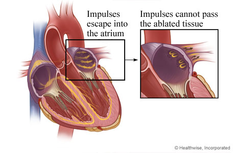 How scar tissue from ablation stops electrical impulses