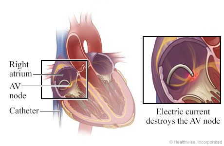 Location of catheter in the heart, with detail of electric current destroying AV node