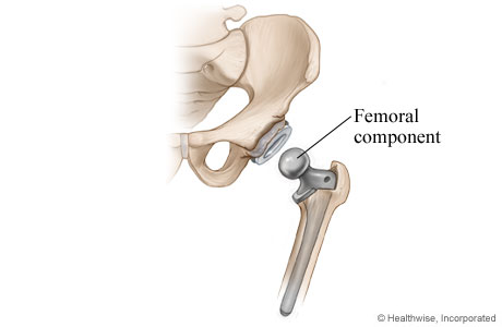 Hip replacement: Step 3 - Femoral component is placed