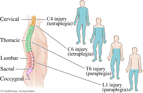 Areas of the body affected by spinal cord injuries