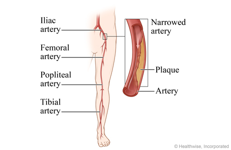 Picture of peripheral arterial disease of the legs