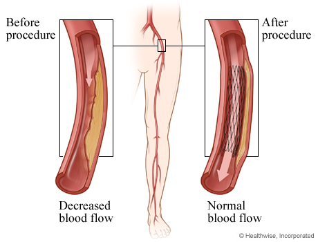 Decreased blood flow before angioplasty and normal blood flow after angioplasty