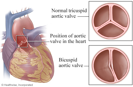 Location of aortic valve in heart, with details of a tricupsid valve and a bicuspid valve