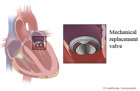 Mechanical mitral valve in heart and close-up of mechanical replacement valve