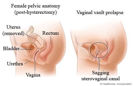 Vaginal vault prolapse