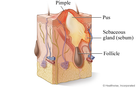 Infected gland and pimple