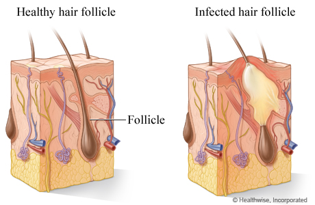 A healthy hair follicle and an infected hair follicle