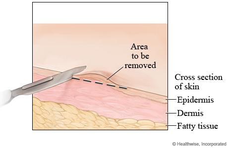 Shave skin biopsy