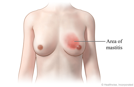 Picture of mastitis (inflammation of the breast)