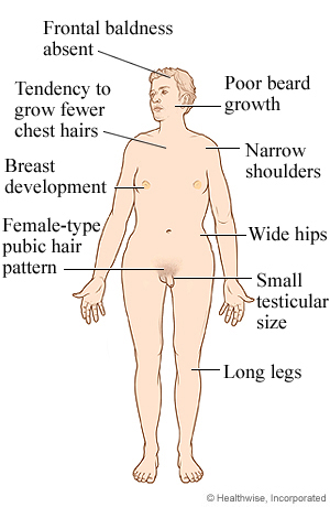 Male with Klinefelter syndrome