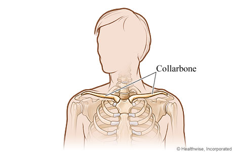 Picture of the collarbone (clavicle)