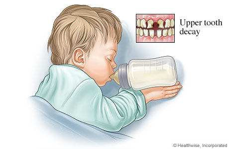 Bottle mouth tooth decay