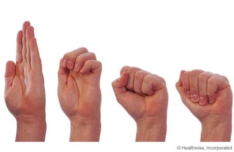 Ejercicios de estiramiento de tendones para las manos con osteoartritis