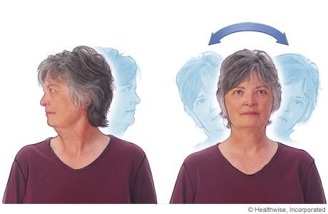 Estiramientos del cuello para la espondiloartritis