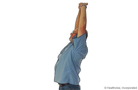 Estiramiento de los hombros y la parte superior de la espalda para la espondiloartritis