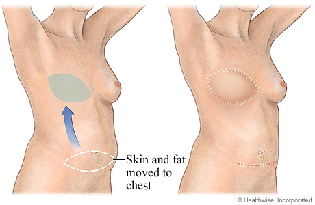 SIEA flap for breast reconstruction