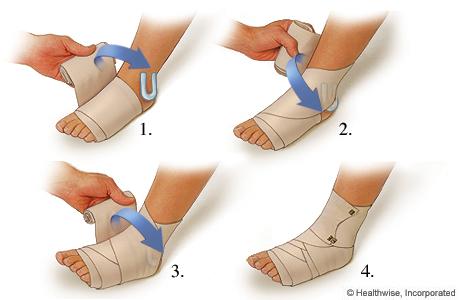 Cómo aplicar un vendaje compresivo para un esguince de tobillo