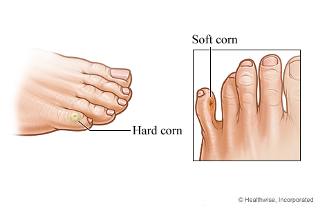 Hard and soft corns on toes