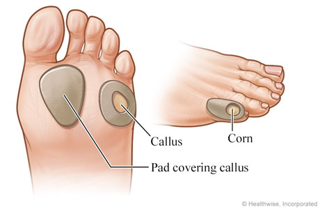 Pads on corn on little toe and on calluses on bottom of foot
