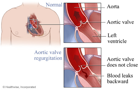 Normal aortic valve and aortic valve regurgitation