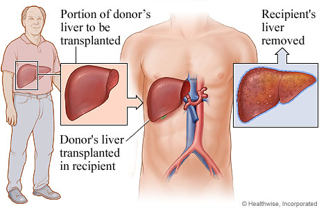 Picture of living-donor liver transplant