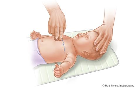 RCP en un bebé, donde se muestra cómo colocar dos dedos sobre el esternón