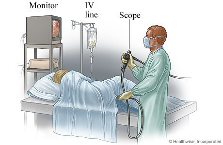 A person having a sigmoidoscopy