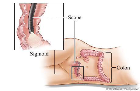 Sigmoidoscope in the sigmoid colon