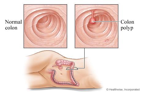 A healthy colon and a colon polyp