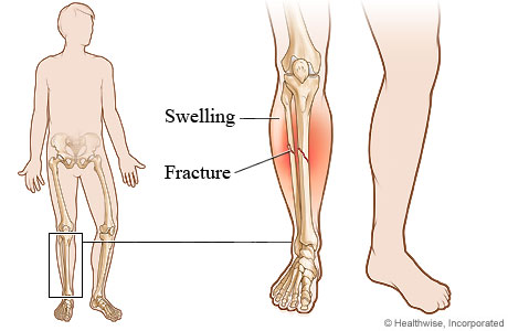 Picture of a lower leg fracture