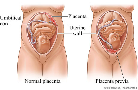 Picture of normal placenta and placenta previa