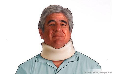 Un hombre usando un collarín
